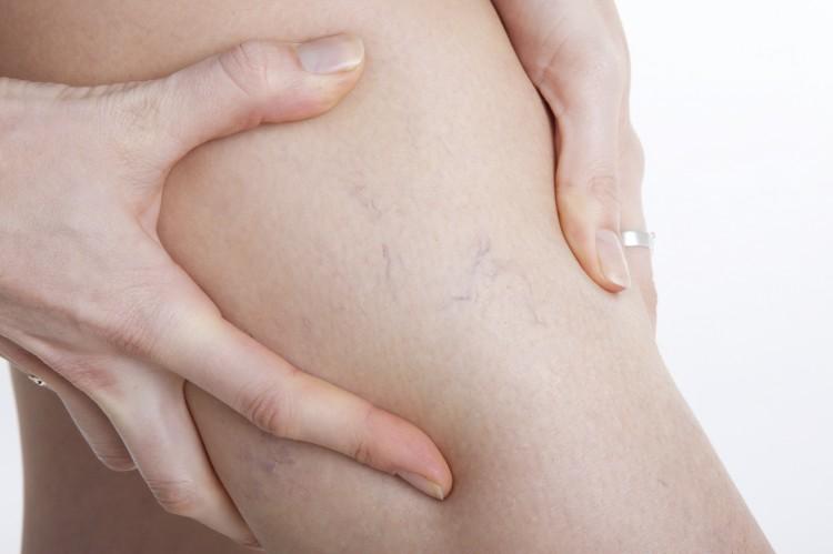 Metoda VNUS - przełom w leczeniu żylaków nóg